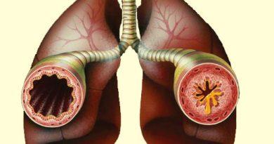 br-astma
