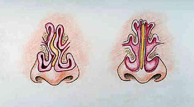 nasals1-1