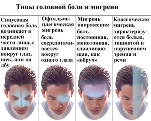 Мигрень боль над глазом