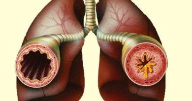 br-astma-1