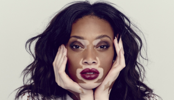 what-is-vitiligo-and-does-it-cause-intense-itching