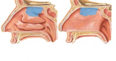 doctors-am-nasal-intonation