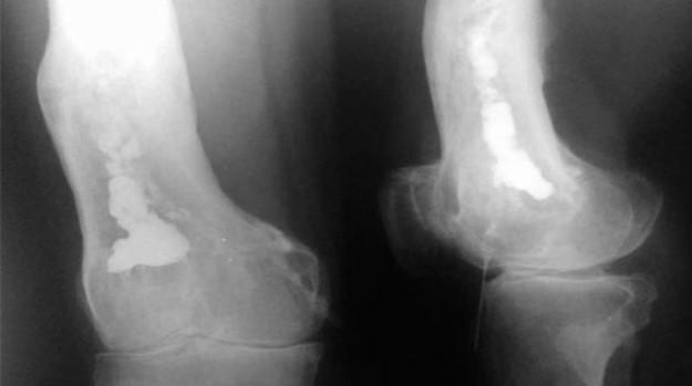 osteomiyelit-diagnostika