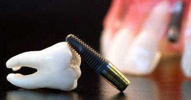 implant-cirkoniy