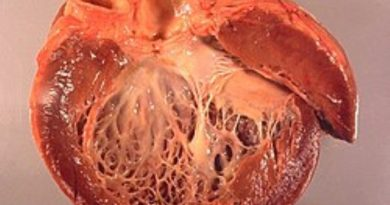 250px-Idiopathic_cardiomyopathy,_gross_pathology_20G0018_lores