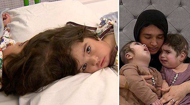 (Armenia) британские врачи разделили сиамских близнецов, сросшихся головами