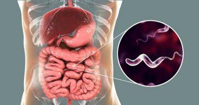 campilobacteriosis