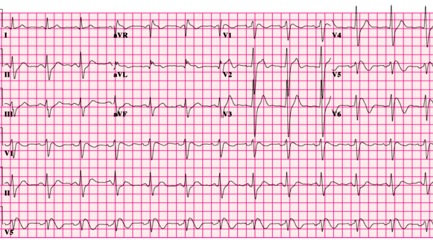 800px-Brugada_syndrome_type1_example1_(CardioNetworks_ECGpedia)