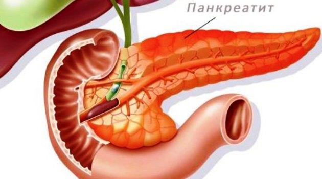 lechenie-pankreatita-v-germanii-wb