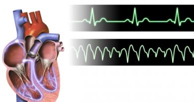 Ventricular_Tachycardia