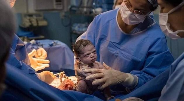 Բրազիլիայում նորածինը խոժոռ հայացքով նայել է իրեն «լացացնել» փորձող բժշկին (լուսանկարներ)