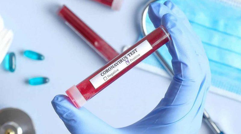 coronavirus-