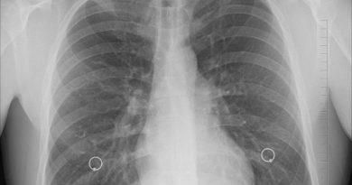 1609858297_diagnosis-1476620_1280