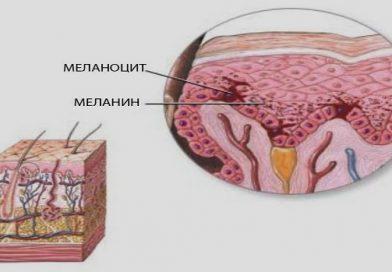 (Armenia) Меланин: от чего зависит пигментация кожи и помогут ли таблетки